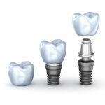 Impianti dentali: cosa sono