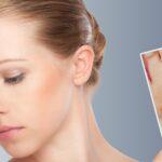 Speciale Pelle & Caldo - Arrossamenti cutanei e irritazioni